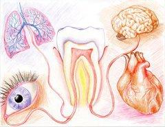 Infeksi Gigi Dentia Dental Care Center